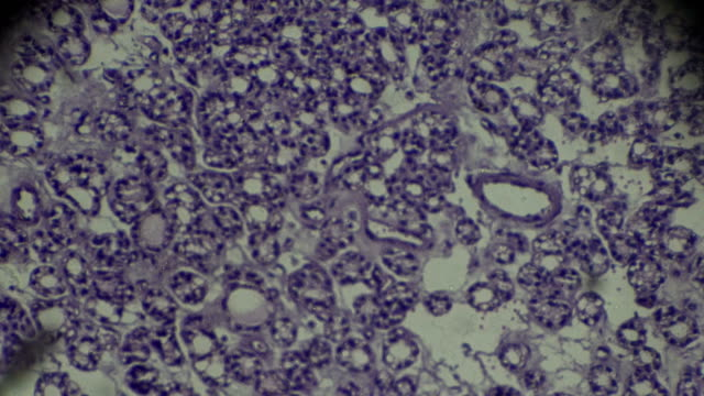 Thyroid carcinoma biopsy in microscopy
