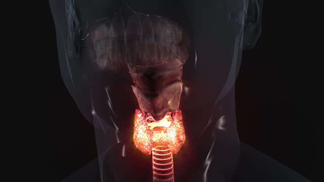 thyroid problems - inflammation stock videos & royalty-free footage