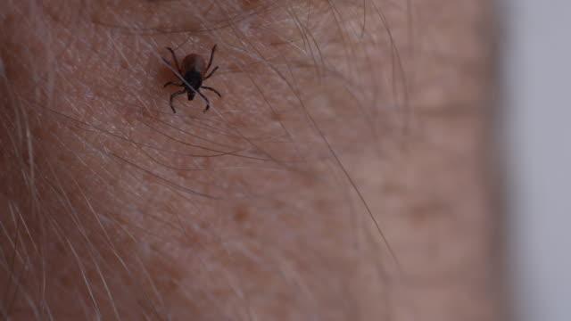 tick ではう人の肌 - 吸血性点の映像素材/bロール