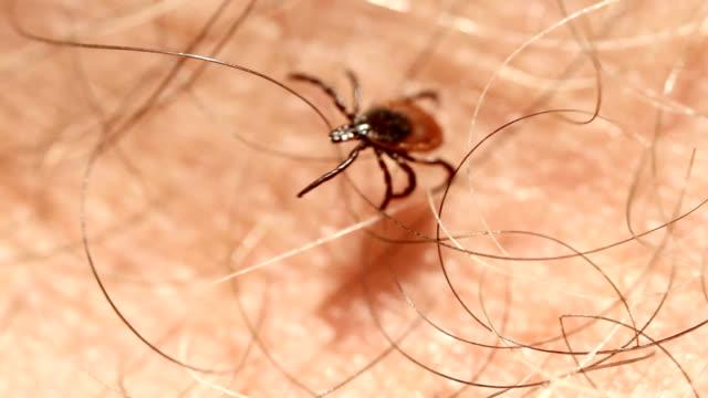 tick stumbling through human hair - 少於10秒 個影片檔及 b 捲影像