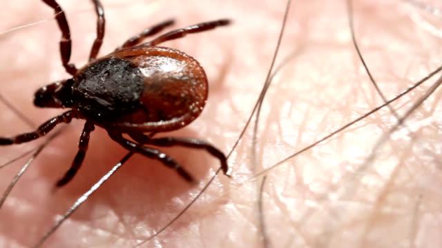tick stumbling through human hair - parassita video stock e b–roll