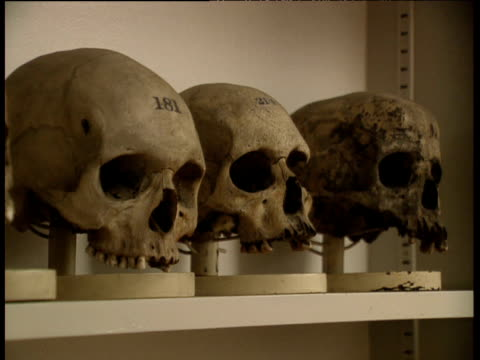 vídeos y material grabado en eventos de stock de tilt down skulls on shelves in st bartholomew's hospital pathology museum - hueso