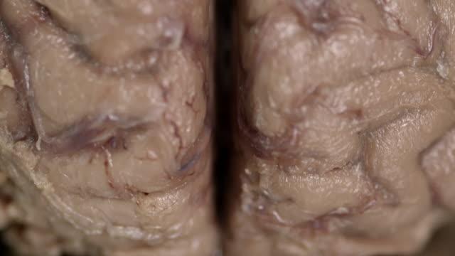 cu tilt up human brain - human brain stock videos & royalty-free footage