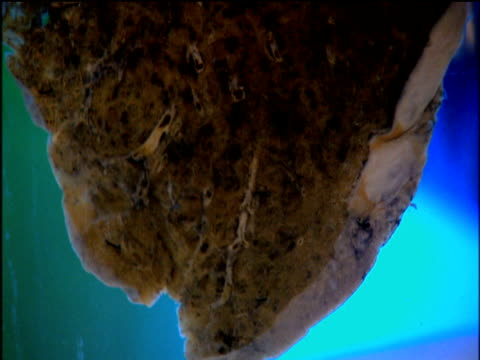 tilt up sample of lung damaged by smoking - smoking stock-videos und b-roll-filmmaterial