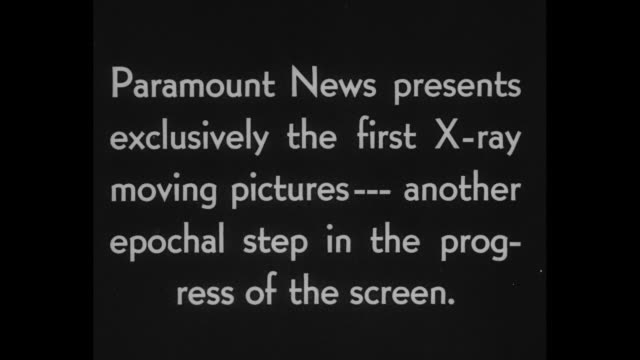 "vídeos y material grabado en eventos de stock de ""science makes first motion picture x-ray"" / title card: ""paramount news presents exclusively the first x-ray moving pictures -- another epochal step... - imagen de rayos x"