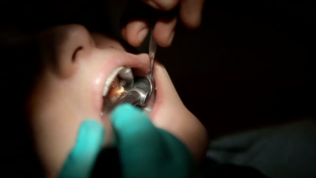 tooth drilling and preparation for the removal of the caries,close up - dental equipment stock videos and b-roll footage