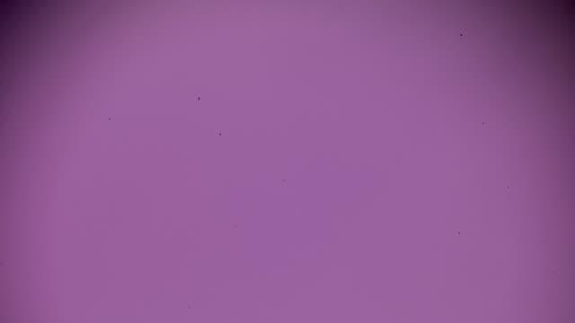 Toxic goiter (hyper-thyroidism) under light microscopy