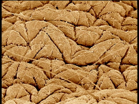 Track over human skin using Scanning Electron Microscope