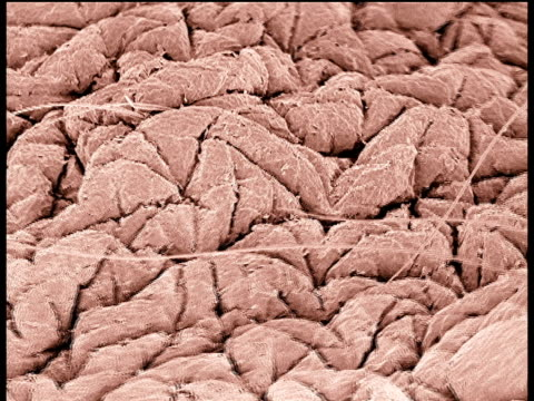 vídeos de stock, filmes e b-roll de track over skin towards hair follicle using scanning electron microscope (sem) - pele humana