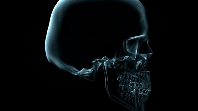 a transparent blue rotating x-ray skull on a black screen. - メディカルイラスト点の映像素材/bロール