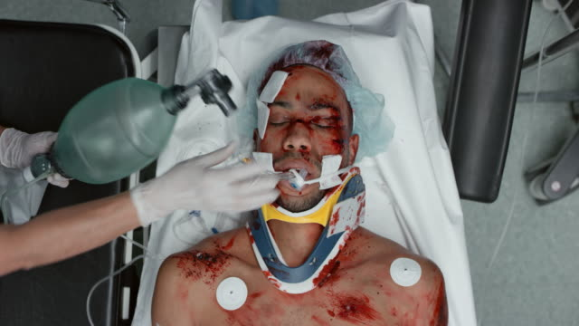 trauma patient being mechanically ventilated - wounded stock videos & royalty-free footage