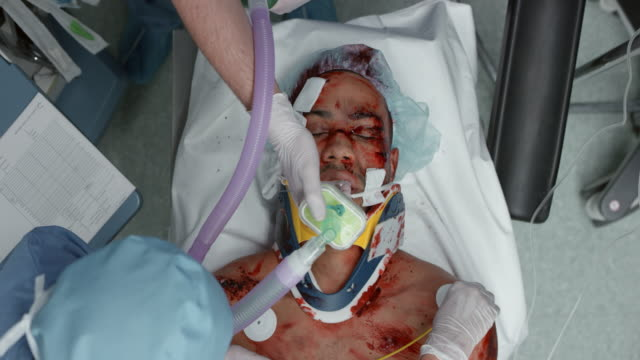 trauma patient on mechanical breathing support - anesthetic stock videos and b-roll footage