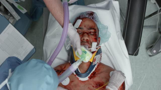 trauma patient on mechanical breathing support - haarnetz stock-videos und b-roll-filmmaterial