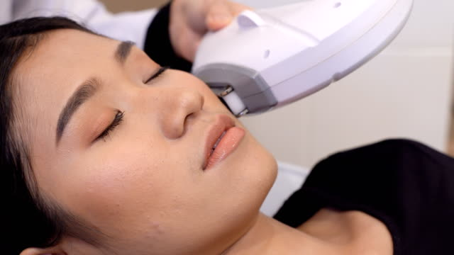 vídeos de stock e filmes b-roll de treatment on asian woman as patient to make skin smooth bright - tratamento a laser