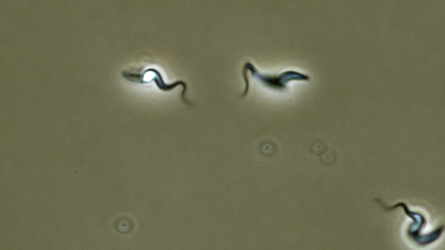 trypanosoma brucei parasites - human joint stock videos & royalty-free footage