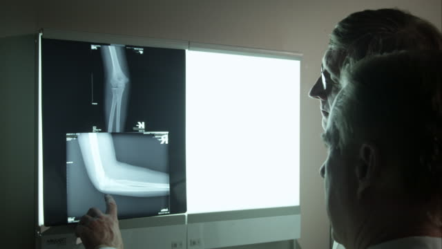 Two doctors referencing a patient's knee x-ray.