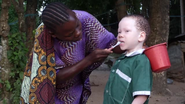 Ukerewe an island off the coast of Tanzania is known as a refuge for people with albinism in the country