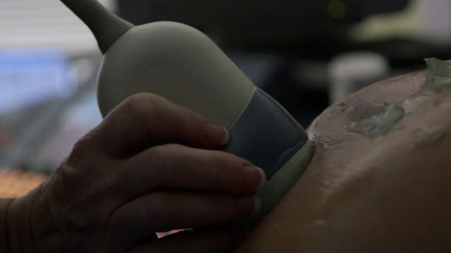 vídeos de stock, filmes e b-roll de ultrasound performed on pregnant woman close up - útero