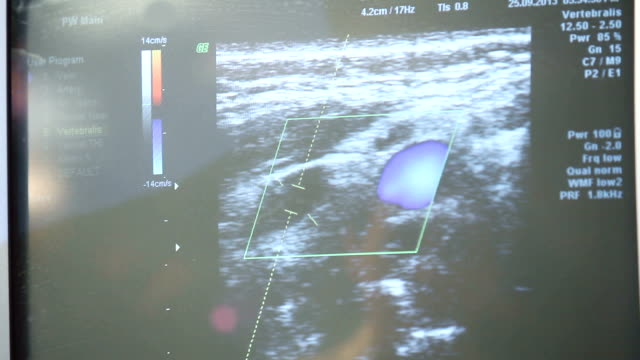 ultrasound scanner in medical clinic, closeup view of display - thyroid gland stock videos & royalty-free footage