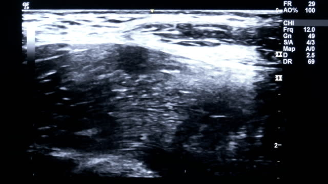 ultrasound - ultrasound scan stock videos & royalty-free footage