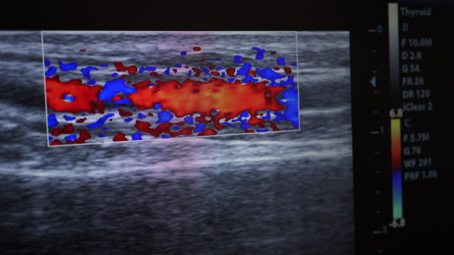 ultrasound - medical record stock videos & royalty-free footage