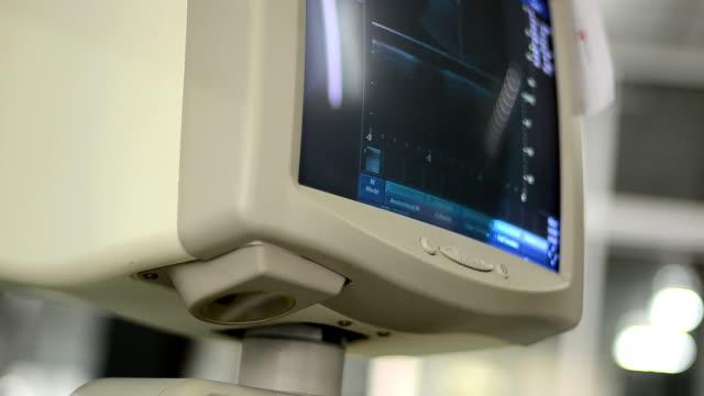 ultrasound - övervakningsutrustning bildbanksvideor och videomaterial från bakom kulisserna