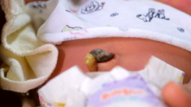 umbilical cord cut and clamped after birth of the newborn - navel stock videos & royalty-free footage