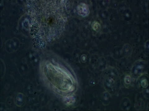 unidentified ciliate with interesting swimming motion - animale microscopico video stock e b–roll