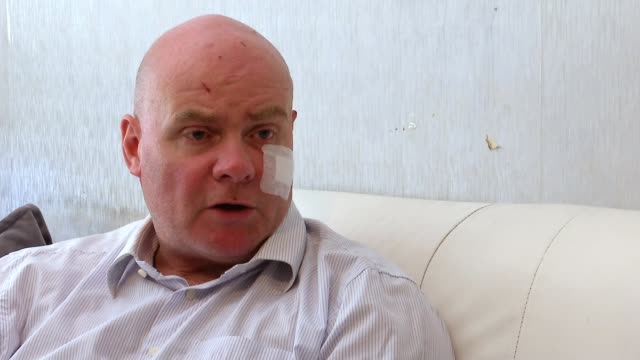 Union leader Steve Hedley attacked after counterprotest to far right rally UK London Steve Hedley interview London INT Steve Hedley Senior Assistant...