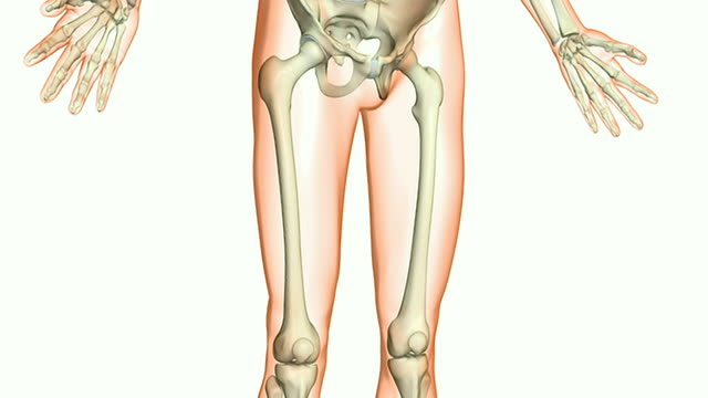upper leg fracture - biomedical illustration stock videos & royalty-free footage