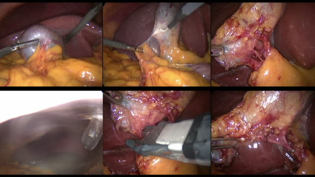 various sequences of laparoscopic gall baldder surgery - human liver stock videos & royalty-free footage