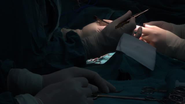 Kärlkirurg suturering anastomos