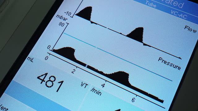 人工呼吸器機 - 生理学点の映像素材/bロール