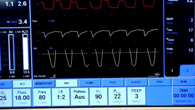 vídeos y material grabado en eventos de stock de ventilador monitor (hd - material médico