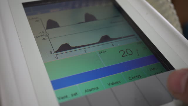ventilator - instrument of measurement stock videos & royalty-free footage