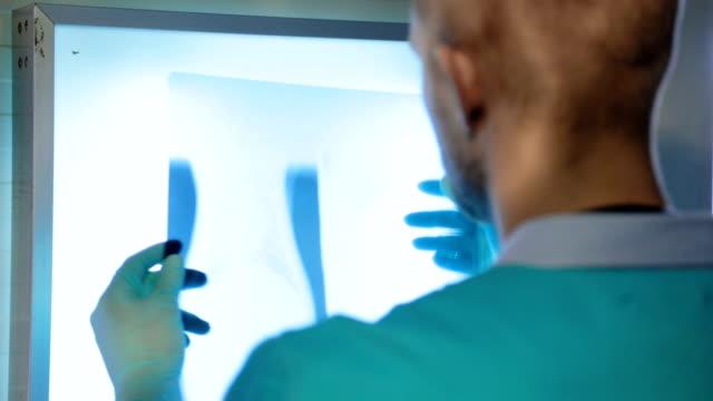 veterinarian examining dog's x-ray image - lightbox stock videos & royalty-free footage