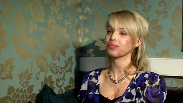 Victim of acid attack Katie Piper talks about rebuilding her life ENGLAND London INT Katie Piper interview SOT Close up of Piper showing...
