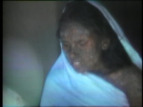 victims in india suffer from a smallpox epidemic. - healthcare and medicine or illness or food and drink or fitness or exercise or wellbeing stock videos & royalty-free footage