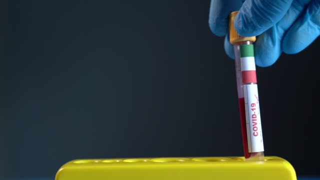 hd video of covid-19 medical test tube with flag of italy in human hand with surgical glove - esami del sangue video stock e b–roll