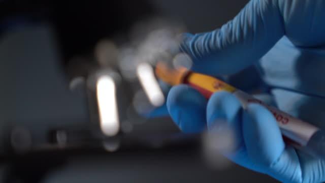 stockvideo's en b-roll-footage met hd video van covid-19 medische reageerbuis met vlag van spanje in menselijke hand met chirurgische handschoen - tube