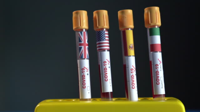hd video of covid-19 medical test tube with flags of uk, spain, us and italy in human hand with surgical glove - selimaksan stock videos & royalty-free footage
