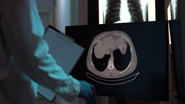 vidéos et rushes de vidéo 4k de radiologue vérifiant l'image de balayage de ct pour covid-19 sur l'écran d'ordinateur - rein humain