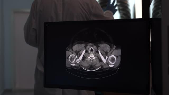 video von radiologen, der röntgenbild auf computermonitor überprüft - niere stock-videos und b-roll-filmmaterial