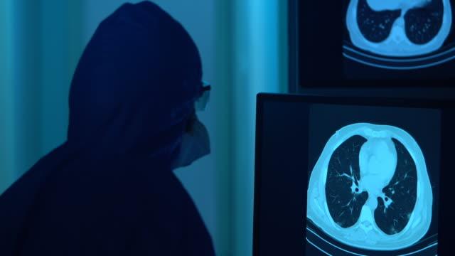 4k video av thorax ct bild av coronavirus positiv patient sett på datorskärm i radiologi clinic - selimaksan bildbanksvideor och videomaterial från bakom kulisserna
