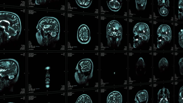 mri video wall. black and white. - midbrain stock videos & royalty-free footage