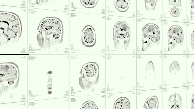 mri video wall. white and black. lateral view. - midbrain stock videos & royalty-free footage