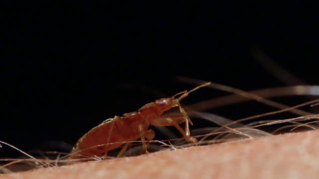 view of a bed bug sucking on human blood in jakarta, indonesia - 吸血性点の映像素材/bロール