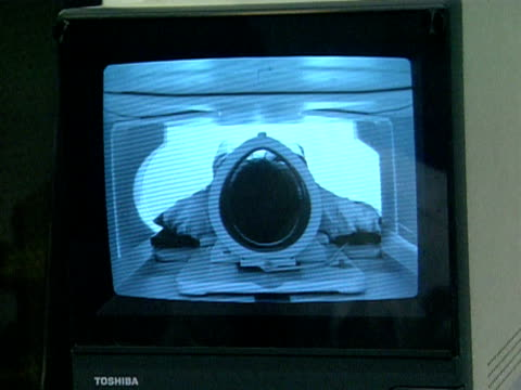 View of an MRI scan on monitors UK 1990s