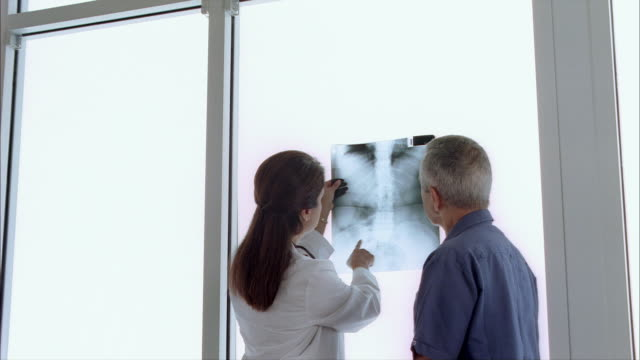 ms tu td view of female dr. discussing x-ray with male patient / miami, florida, usa  - x ray image stock videos & royalty-free footage