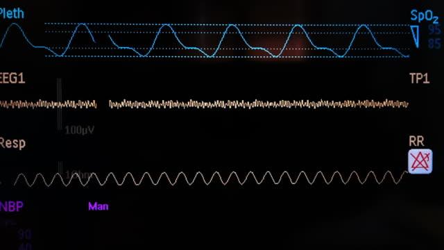 vidéos et rushes de moniteur de signe vital - rythme cardiaque